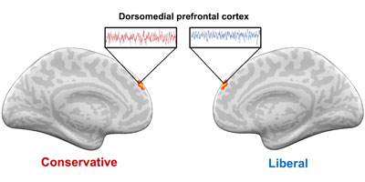 "A graphic shows differences in brain activity in the dorsomedial prefrontal cortex between liberals and conservatives. The brain on the left is says ""conservatives"" in red and the brain on the right says ""liberal"" in blue."