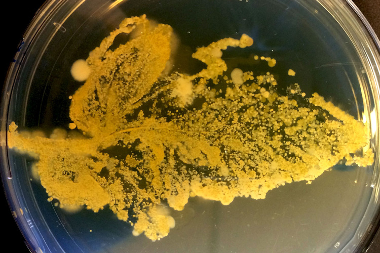 microbes from a leaf growing on an agar gel