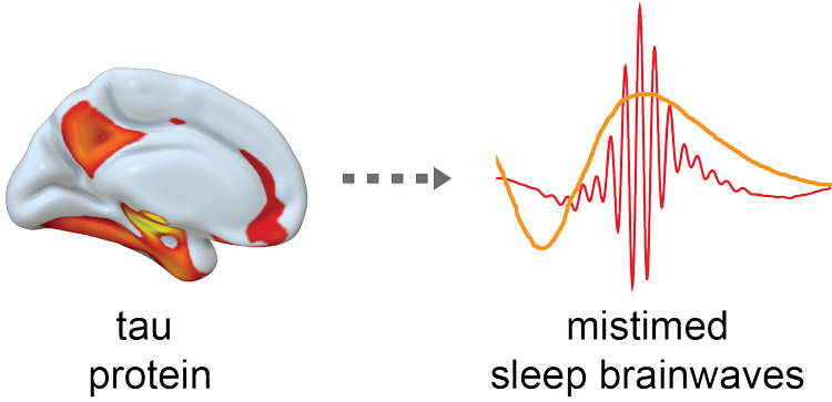 tau protein in brain makes brainwaves out of sync