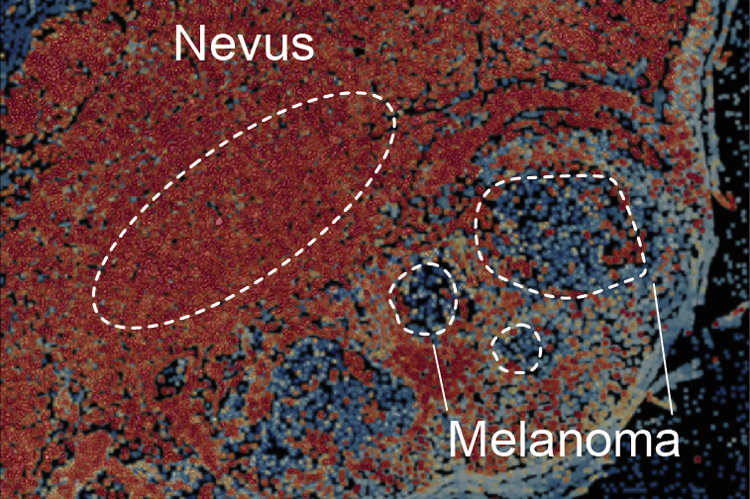 nevus that is transitioning into a melanoma