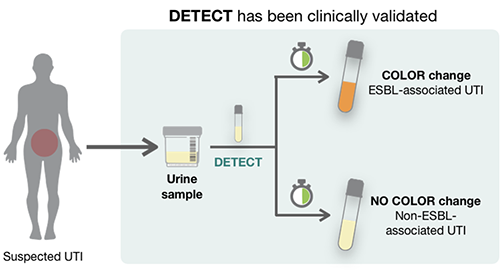 illustration of urine sample using DETECT to determine existence of ESBL