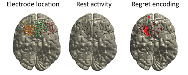 Image of brains with electrode location, rest activity and regret encoding.