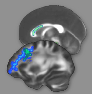 Intense prep for law school admission test alters brain structure the white matter regions highlighted in green or blue showed changes after intense preparation for the lsat suggesting improved interconnections among malvernweather Gallery