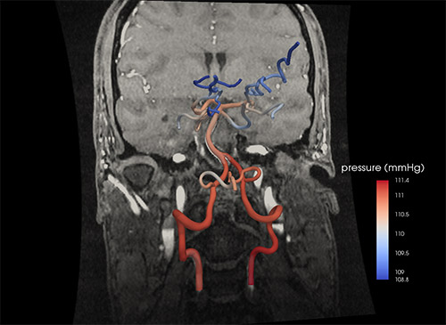 Computer model of cerebral arteries generated from CT scan.