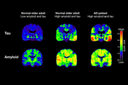 PET scans that track tau (top row) and beta-amyloid from two normal older people and one patient with Alzheimer's disease (AD).