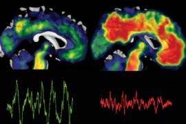 Brain scans showing a brain benefiting from deep sleep brain waves and an absence of beta-amyloid (left) and one that shows deposits of the toxic protein, beta-amyloid.